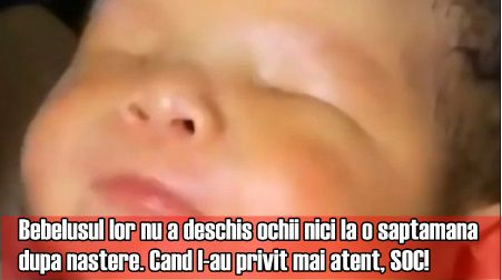 Bebelusul lor nu a deschis ochii nici la o saptamana dupa nastere. Cand l-au privit mai atent, SOC!