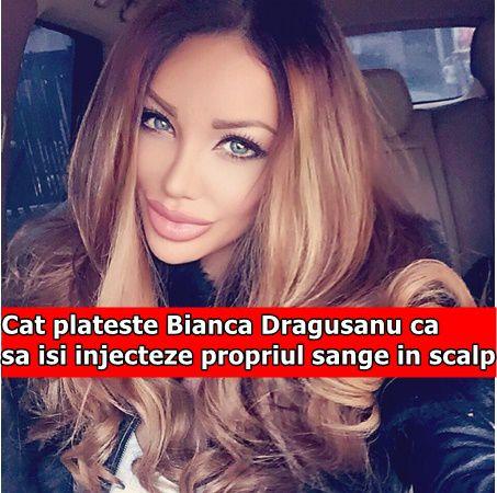Cat plateste Bianca Dragusanu ca sa isi injecteze propriul sange in scalp