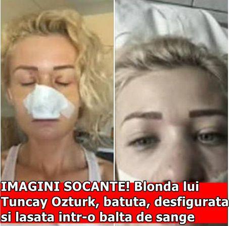 IMAGINI SOCANTE! Blonda lui Tuncay Ozturk, batuta, desfigurata si lasata intr-o balta de sange