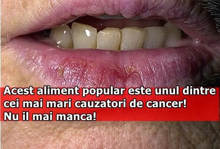 Acest aliment popular este unul dintre cei mai mari cauzatori de cancer! Nu il mai manca!