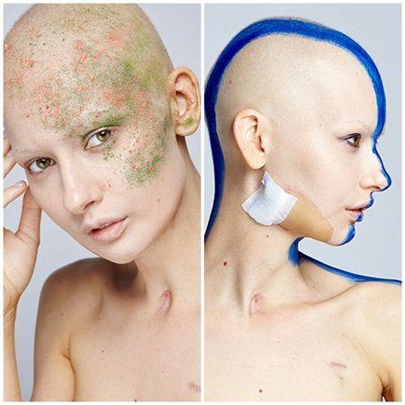Acest model bolnav de cancer ne arata ce inseamna sa lupti pentru viata