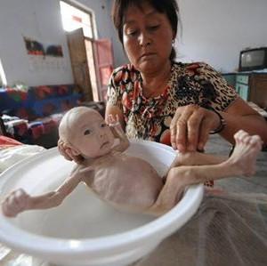 Caz CUTREMURATOR. Cum arata copilul care s-a nascut fara anus