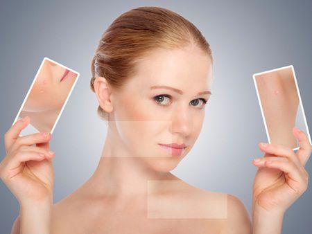 Scapa definitv de acnee cu usturoi si masca de aspirina