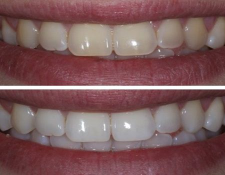 Cel mai simplu si inofensiv mod de a albi dintii acasa intr-un minut