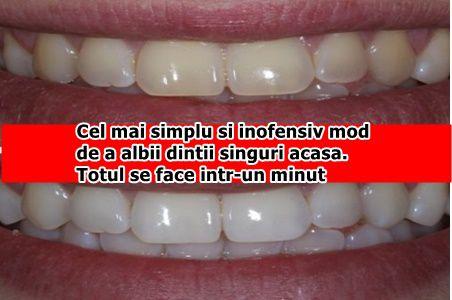 Cel mai simplu si inofensiv mod de a albii dintii singuri acasa. Totul se face intr-un minut