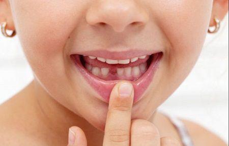 """Dintii de lapte cazuti de la copii sunt """"comori de aur""""! Motivul pentru care sa nu-i arunc"""