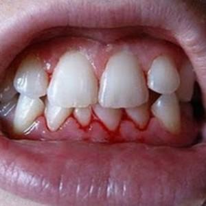 Daca gingiile iti sangereaza, acesta este un semn de ingrijorare. Poti avea o boala grava