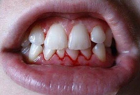 Daca gingiile iti sangereaza, acesta este un semn de ingrijorare, care nu ar trebui ignorat