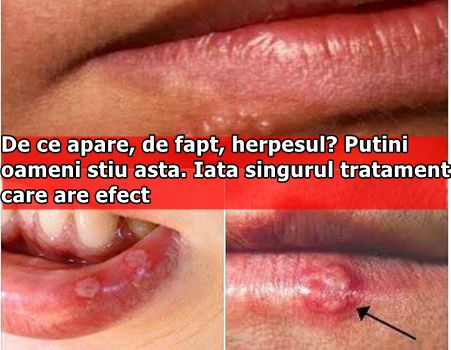 De ce apare, de fapt, herpesul? Putini oameni stiu asta. Iata singurul tratament care are efect