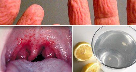 Ti-au spus ca apa calda cu lamaie este buna pentru organism, dar iata ce nu ti-au spus!