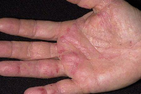Primul SEMN de cancer apare pe maini! NU IL IGNORA