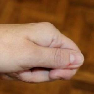 Daca vedeti acest lucru pe unghiile dvs, consultati imediat un medic! Nu va puneti viata in pericol!