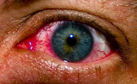 Un barbat a fost diagnosticat cu cancer la ochi pentru ca facea acelasi lucru pe care il faci si tu aproape zilnic!