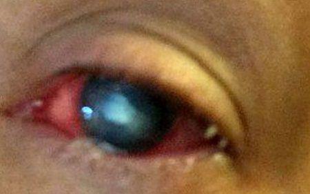 Ochiul ei se umflase si doctorii nu stiau ce are