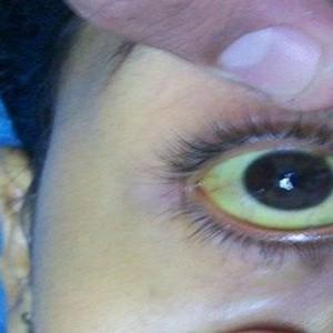 Pielea si ochii au inceput sa i se ingalbeneasca. Doctorii i-au pus un diagnostic care a facut-o sa intre in stare de soc!