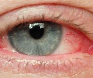 "Simptomele unei boli grave apar la ochi. Ce se intampla cand vezi ""in ceata"""