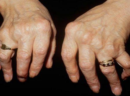 Aceasta femeie s-a vindecat singura de reumatism. Impartasiti reteta si altor oameni care au nevoie