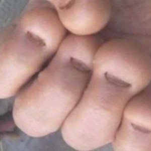 Daca aveti obiceiul de a va roade unghiile cititi neaparat ASTA! Obiceiul asta a ucis un om!