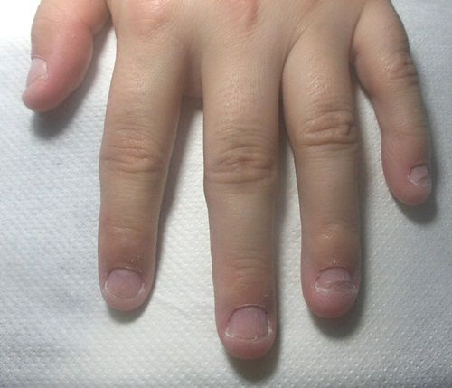 Daca aveti obiceiul de a va roade unghiile cititi neaparat ASTA
